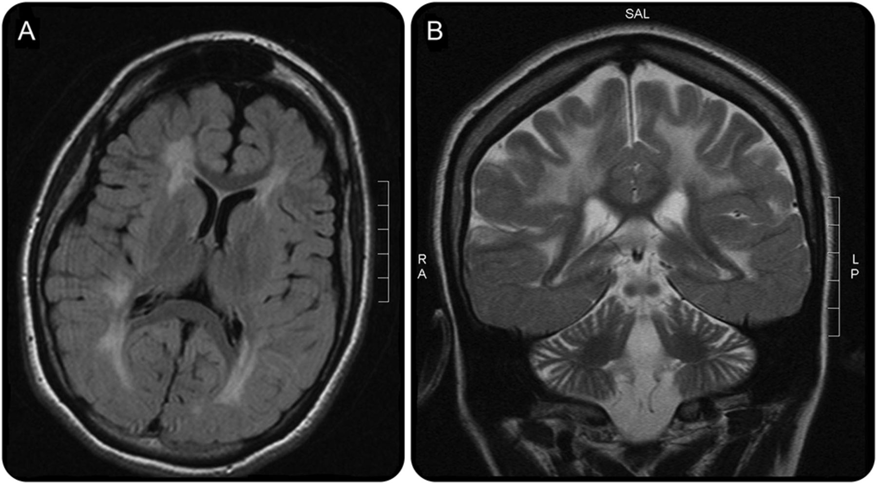 Late diagnosis of cerebral folate deficiency: Fewer seizures with ...